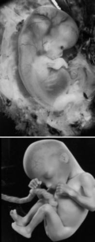 Embryo Wächst Nicht